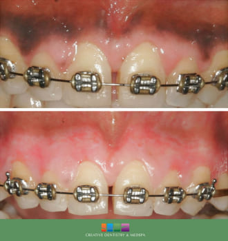 Creative Dentistry & Medspa Gum Bleaching Before and After